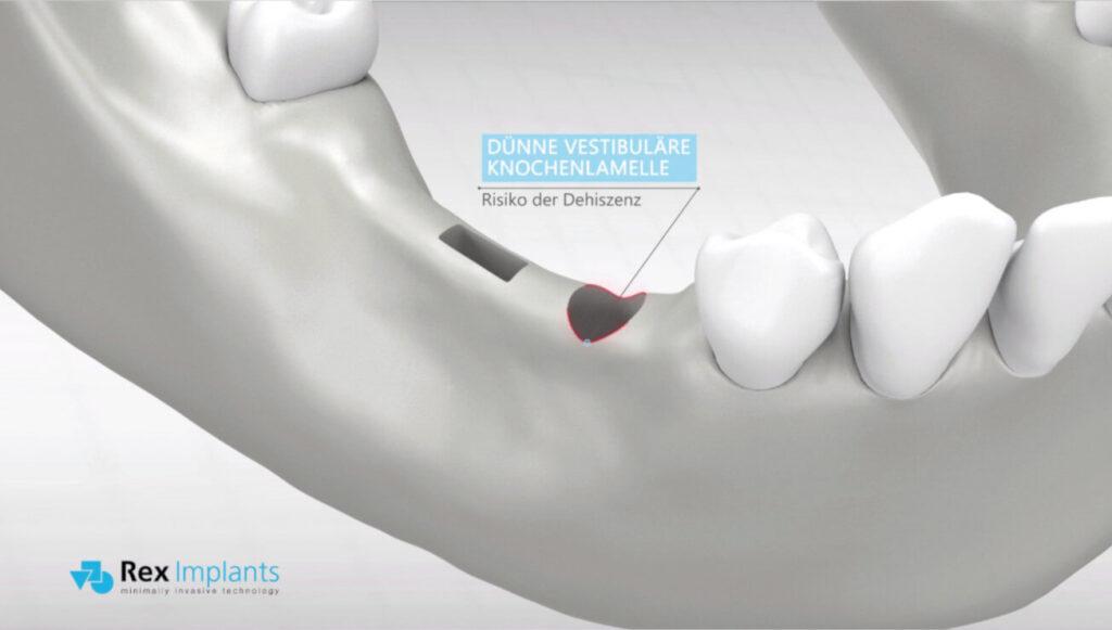 Problematik bei Verwendung von runden Standard-Implantaten in schmalen Kieferknochen