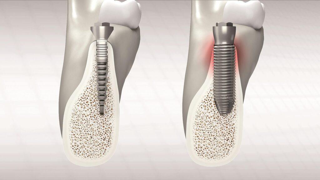 Vorteil REX-Implantat bei schmalem Kieferknochen