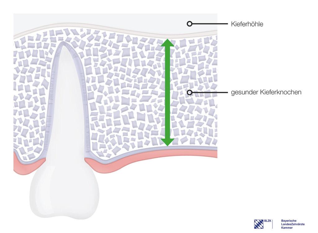 Gesunder Kieferknochen – Einsetzen eines Standardimplantats möglich