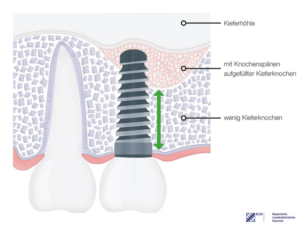 Einsatz von DIVA-Implantat – das Knochenersatzmaterial wird durch das Implantat in die richtige Postion eingebracht