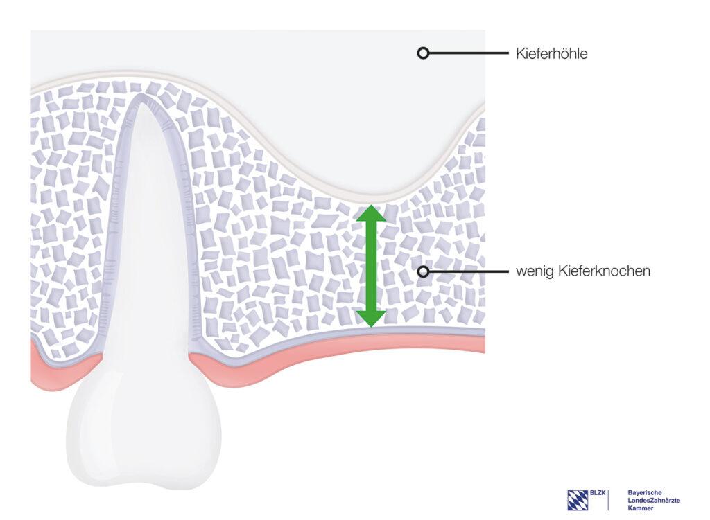 Wenig Kieferknochen – Einsetzen eines Standardimplantats nicht möglich